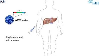 Una vita sotto la «luce blu», ora la cura efficace arriva con la terapia genica
